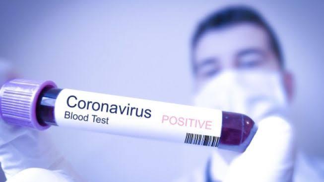 Epidemiolog Prediksi Ada Ledakan Pasien Corona Usai Lebaran 2020