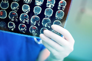 Tanda 8 Gejala Awal Tumor Otak Perlu Diwaspadai