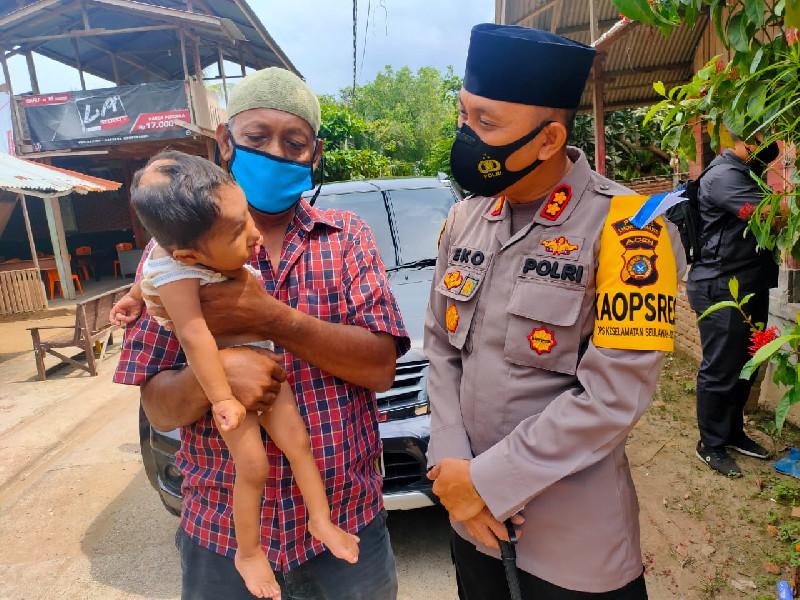 Kapolres Lhokseumawe Bantu Penderita Bibir Sumbing di Aceh Utara